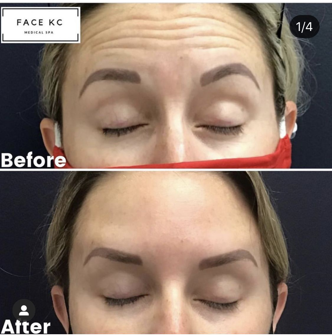 Face Kc Kansas City Medical Spa Medical Spa Skin Benefits Lip Fillers