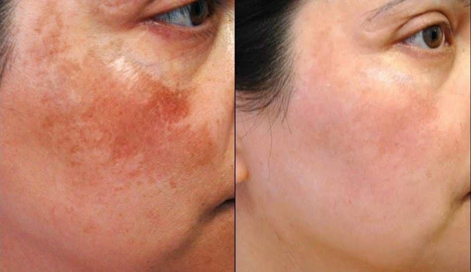 Photo of Harmful sun rays, acne on some areas of your skin …