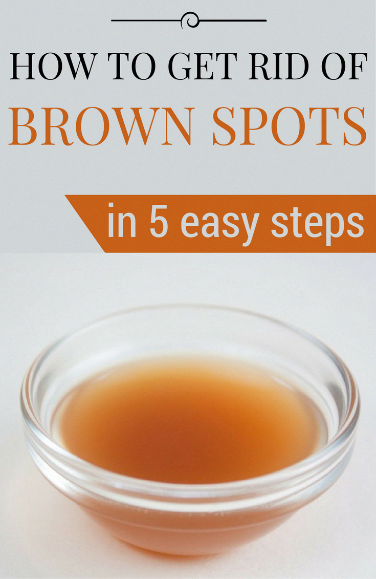 Tips on how to Get rid of Brown Spots on Face Normally #Fitness #LittleBrownSpotsOnSkin #BrownSpotsO...