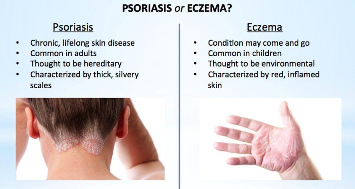 Psoriasis Hashtag On Twitter Psoriasis Psoriasis Treatment
