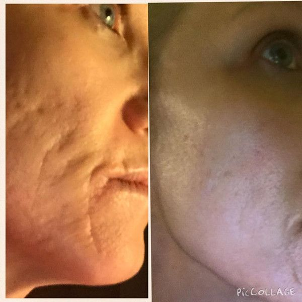 13+ Rosehip oil before and after ideas in 2021