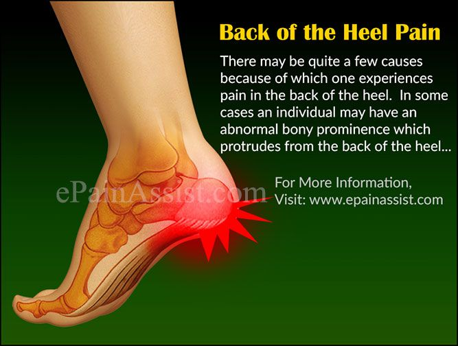 Pin on Foot Pain,Causes, Treatment.