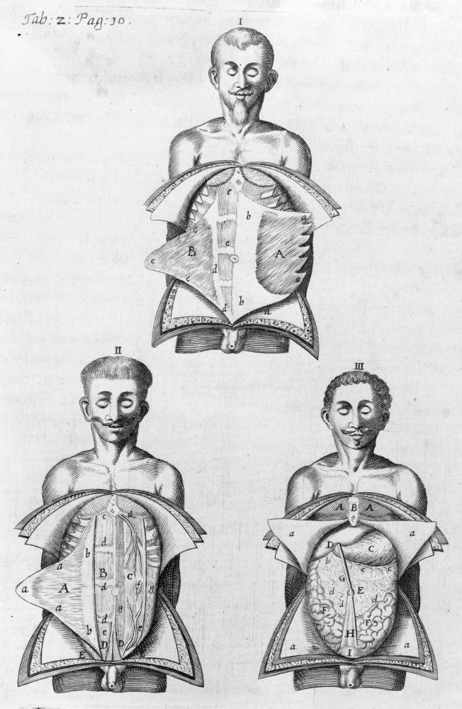 Anatomie de l\'abdomen : muscles, vaisseaux et organes]. Mots-clés ...