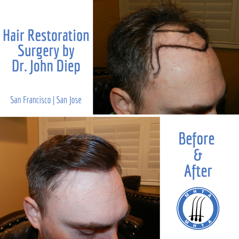 If You Re Experiencing Unwanted Premature Hair Loss Talk To Dr