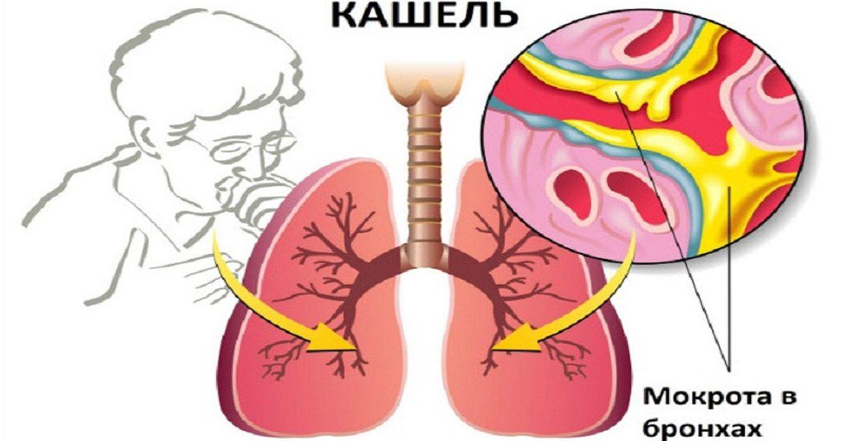 Надоело кашлять? Аптечные препараты оказались неэффективными? Здесь рецепт чудесного средства от кашля. Это средство хорошо зарекомендовало себя в лечении астмы, бронхита и сильного кашля! Каждый из нас хотя бы раз в жизни переносил бронхит, простуду или другие респираторные инфекции, которые в начальной стадии зачастую сопровождаются сухим кашлем. Многие также наблюдали стадию, когда сухой кашель превращался