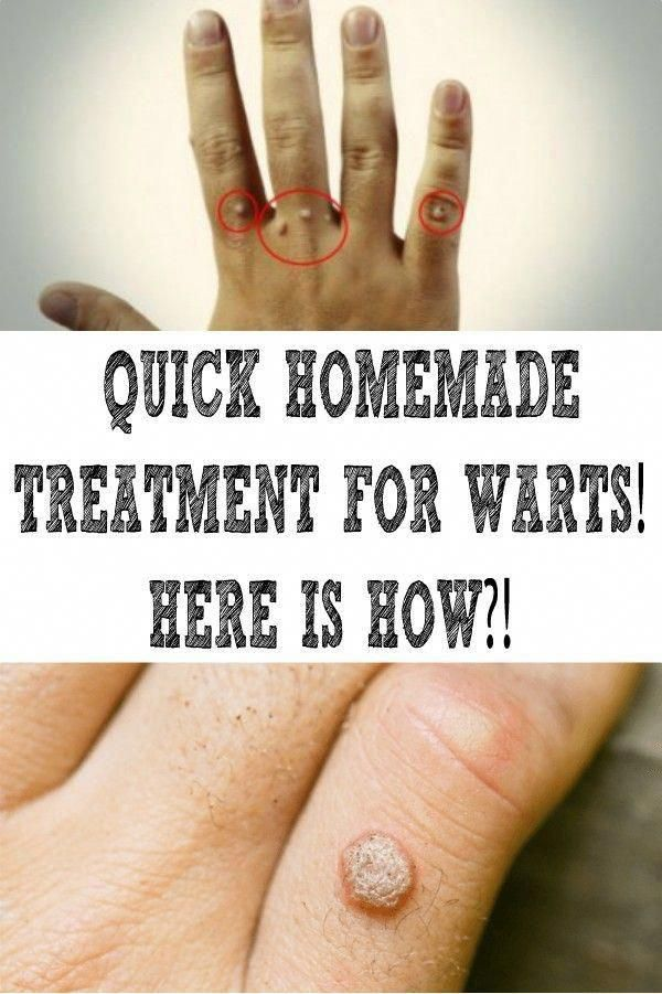 5 Easy House Remedies To have Rid Of Skin Warts #Fitness #HomeRemediesForWartsOnFinger