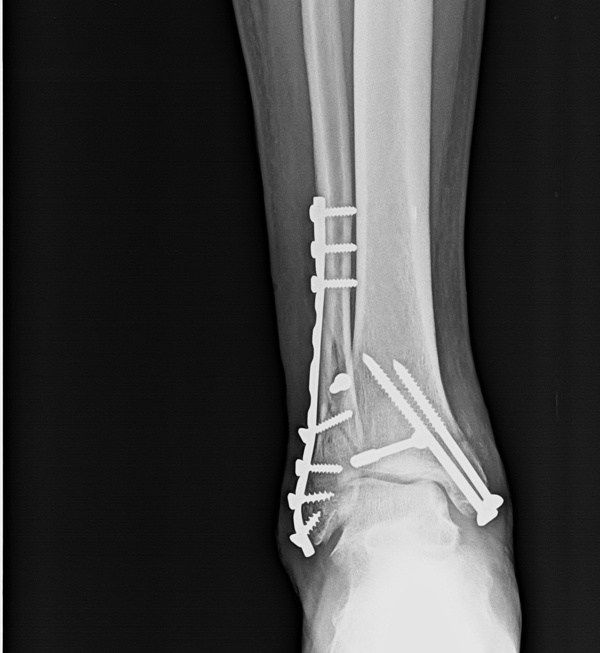 Anteroposterior Xray Of Ankle Showing Operated Fracture Bimalleolar