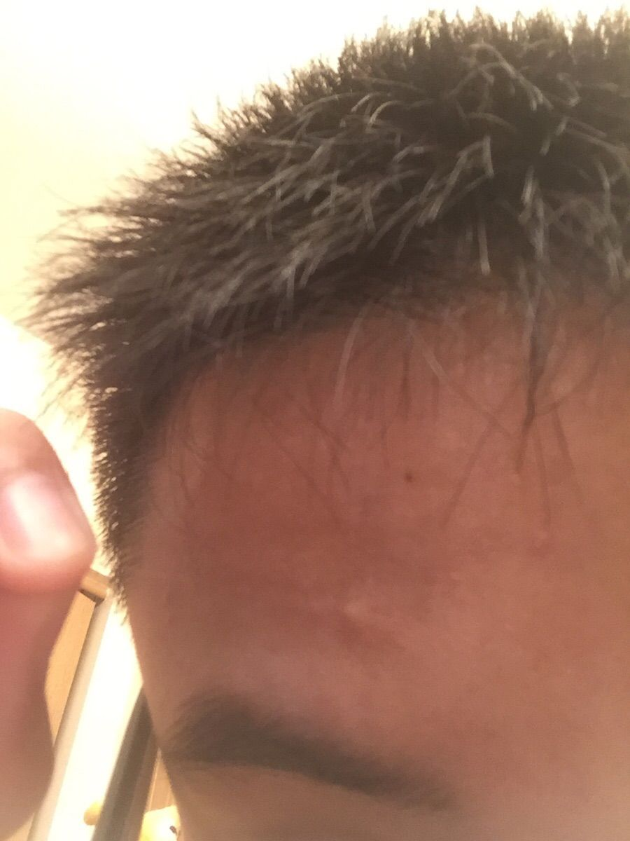 I Have A Single White Hair Growing From My Forehead Pets Funny
