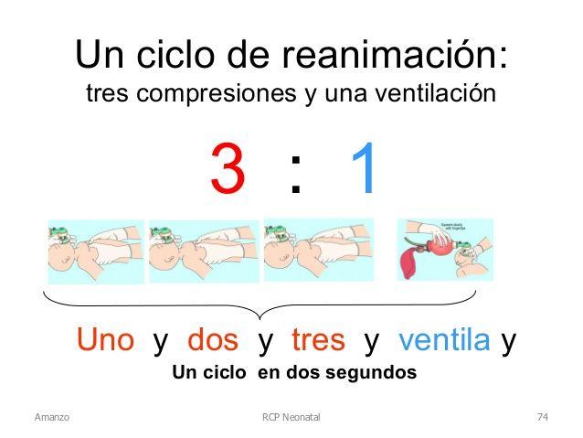 Rcp Neonatal Un Ciclo De Reanimacion Tres Compresiones Y Una