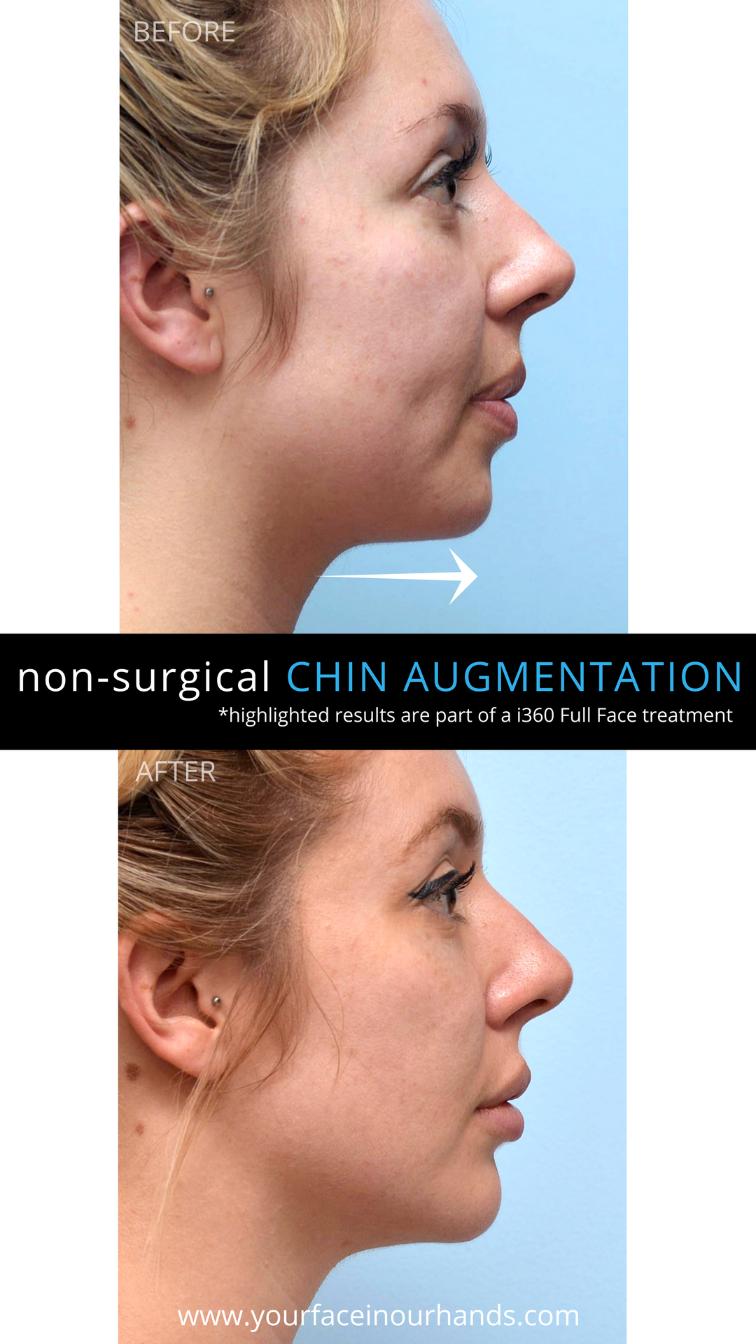 Before And After Results Of A Non Surgical Chin Augmentation With Dermal Fillers Aesthetics Chin Augmentation Facelift Without Surgery Face Plastic Surgery