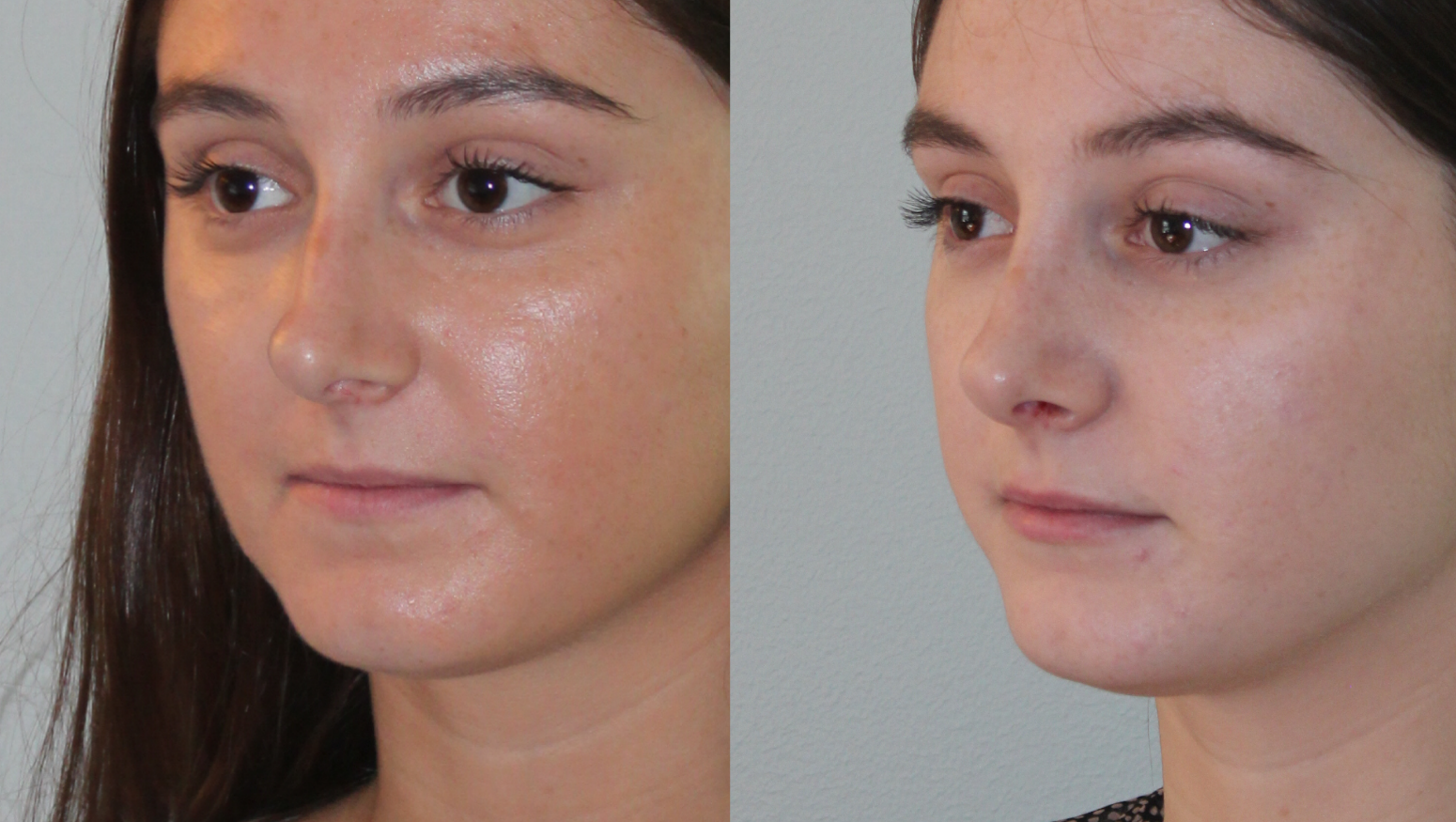 Drastic reduction in the tip of the nose after surgery to repair a broken nose.