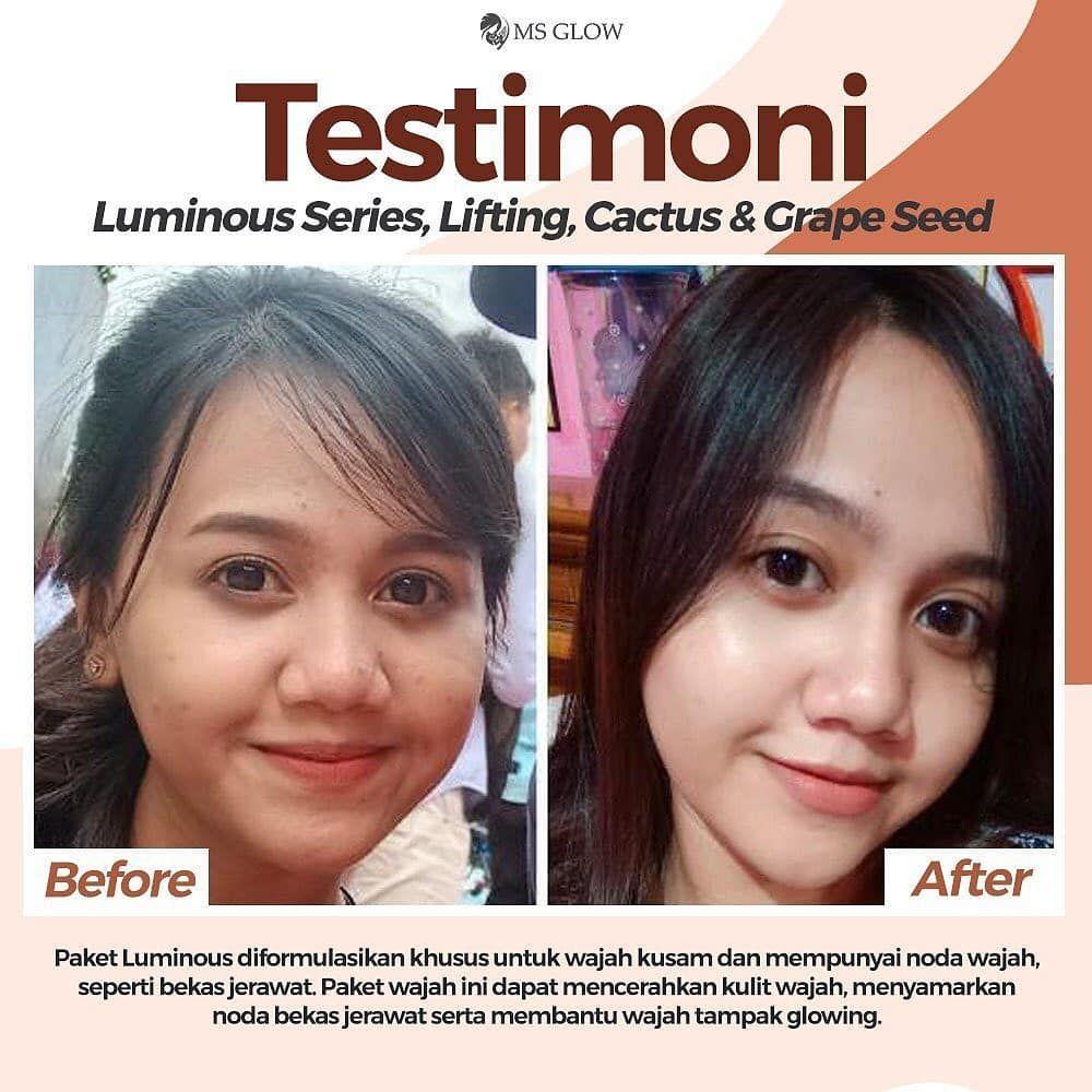 Supaya Hasil Makeup Flawless Buat Kulit Berjerawat