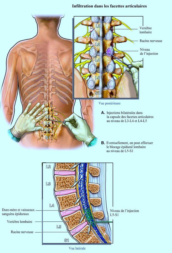 Osteokhondroz peut se tenir la température