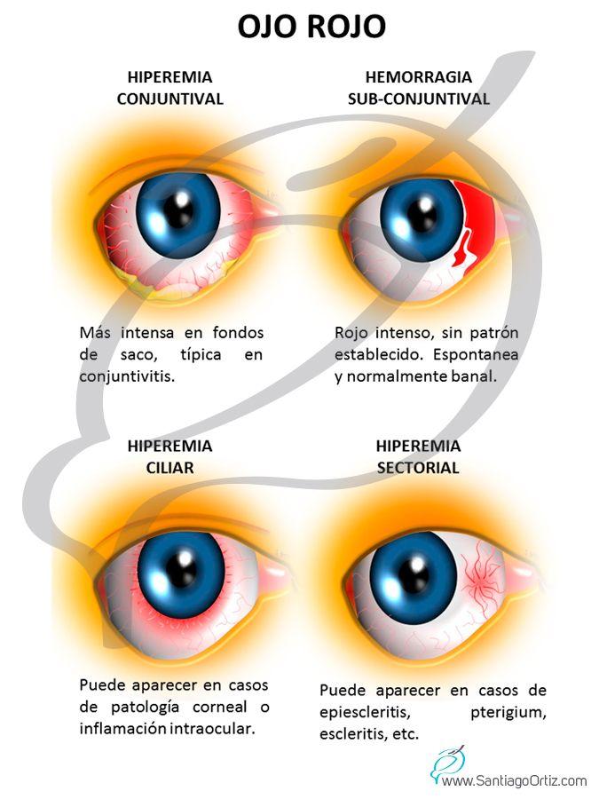 OJO ROJO El síndrome de ojo rojo incluye un grupo de enfermedades ...