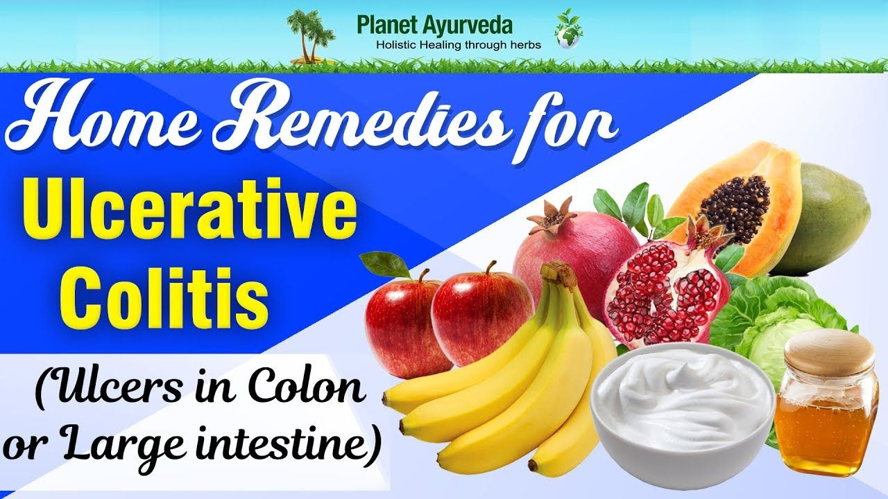 ulcerative colitis treatment – diet and home remedies to