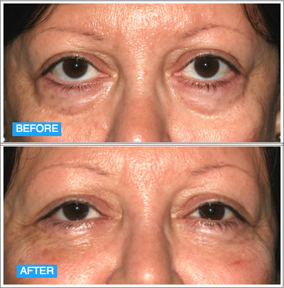Before and After @Weiss Cosmetics and Laser Procedures