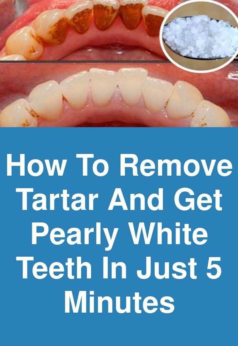 How To Get Rid Of Yellow Plaque In Between Teeth