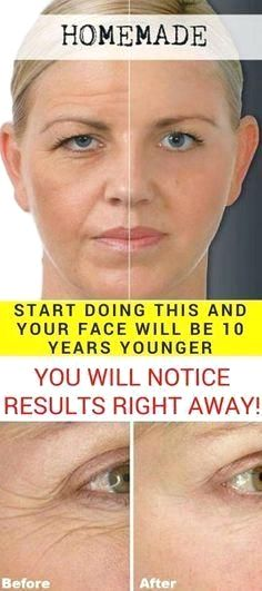 Photo of Start Doing This And Your Face Will Be 10 Years Younger! (You Will Notice Results Right Away)