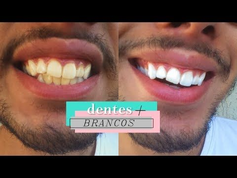 Dentes Brancos Em 2 Minutos Receita Caseira Youtube Beleza