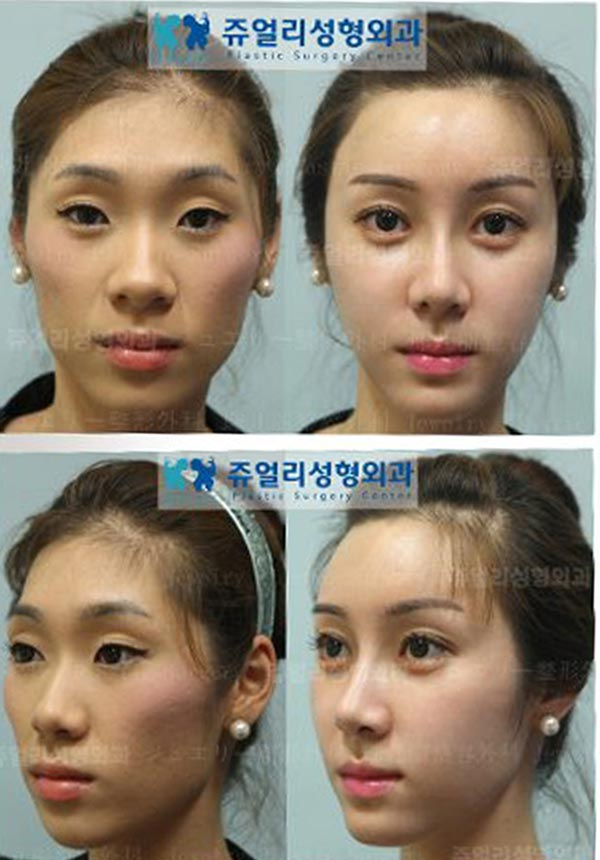 Korean Celebrity Plastic Surgery Before After Always Interesting What You Can Find When You Type I Rhinoplasty Celebrity Plastic Surgery Facial Plastic Surgery