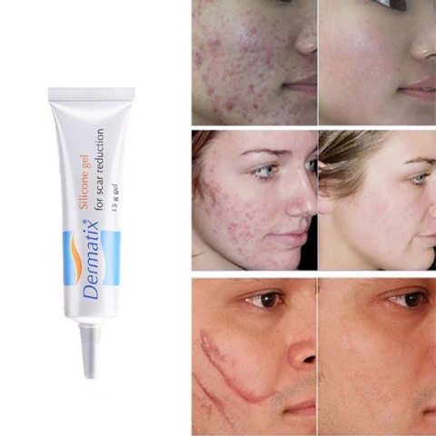 Youthful Scar Rejuvenating Cream Weekend Hype Scar Cream Scar