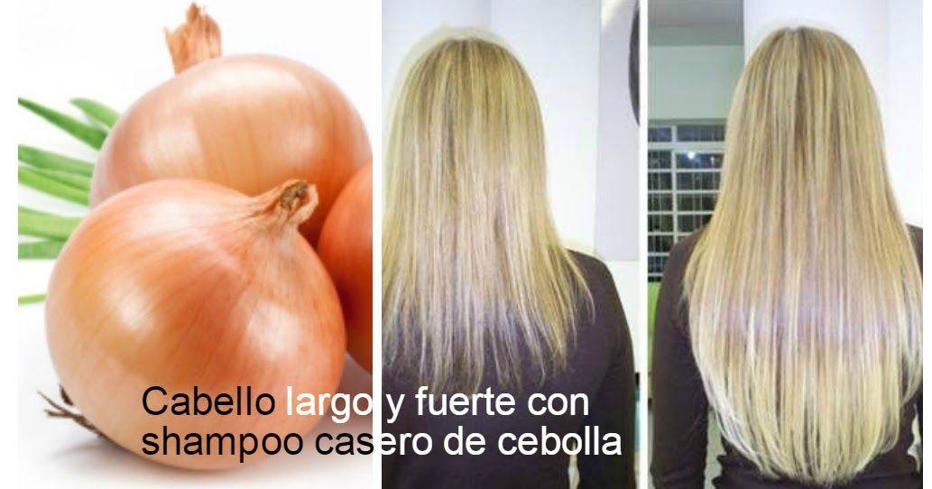 Shampoo De Cebolla Receta Casera Para El Crecimiento Del Cabello