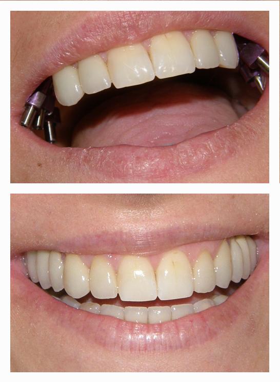 Dental Implants And Ceramic Crowns On It Dental Implants Dental Dentist