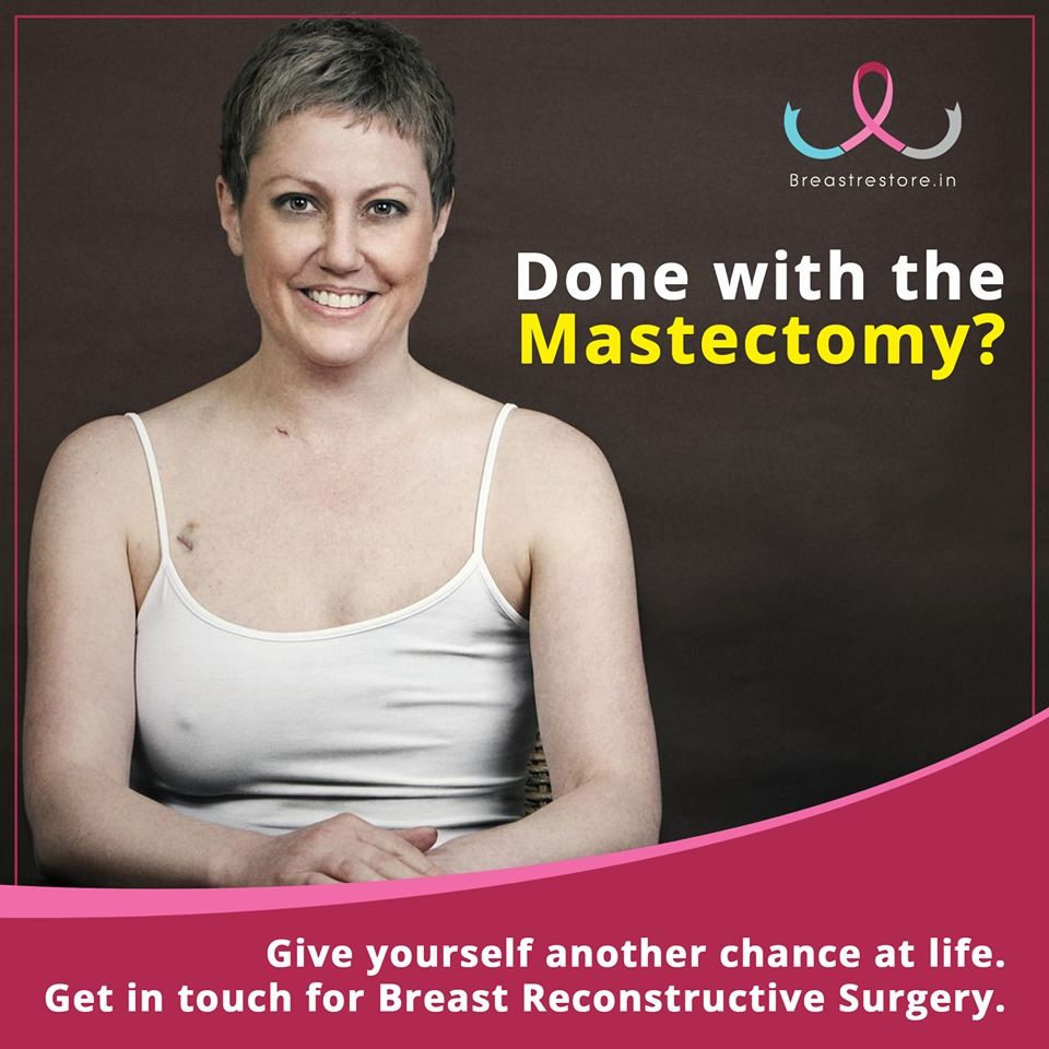 7fdfc9b9962078d8fa22ec6b4436445b - How Long Does It Take To Get Over Breast Cancer Surgery
