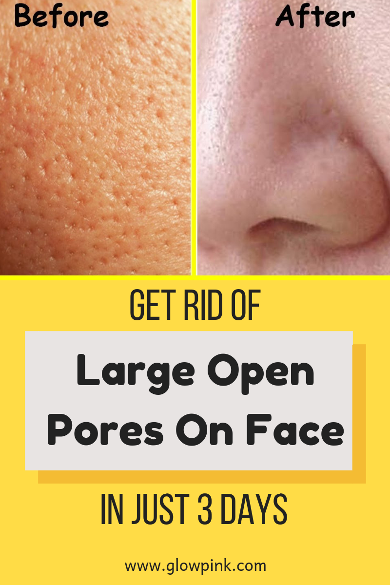 Get Rid Of Large Open Pores On Face In Just 3 Days 100 Effective Skin Skincare Skincaretips Skinpores Open Pores On Face Facial Skin Care Skin Care Tips