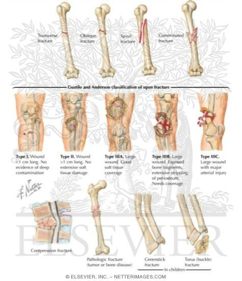Gustilo And Anderson Classification Of Open Fracture Pa C