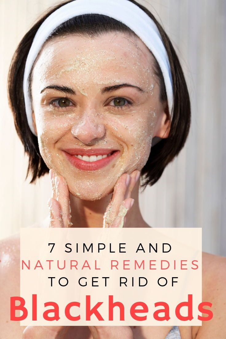 7 simple and natural remedies to get rid of blackheads