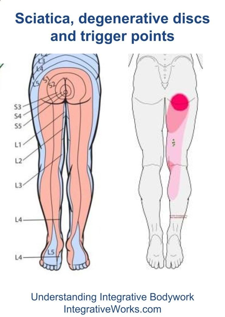 fi-sciatica-and-trigger-points | Salud | Pinterest | Nervio ciático ...