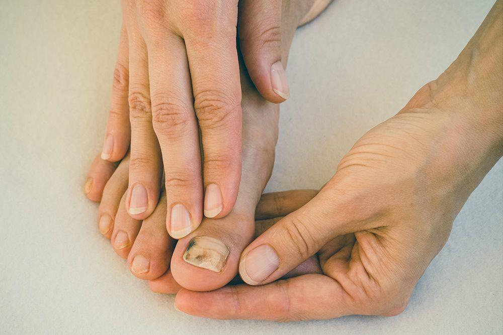 How to Get Rid of Toenail Fungus | Nails | Toe nails, Yellow nails ...