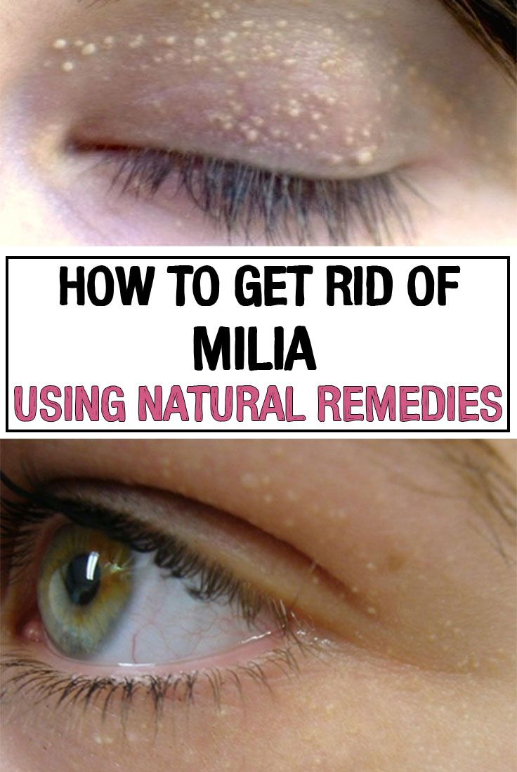 How to Get Rid of Milia Using Natural Remedies   Remedios   Natural