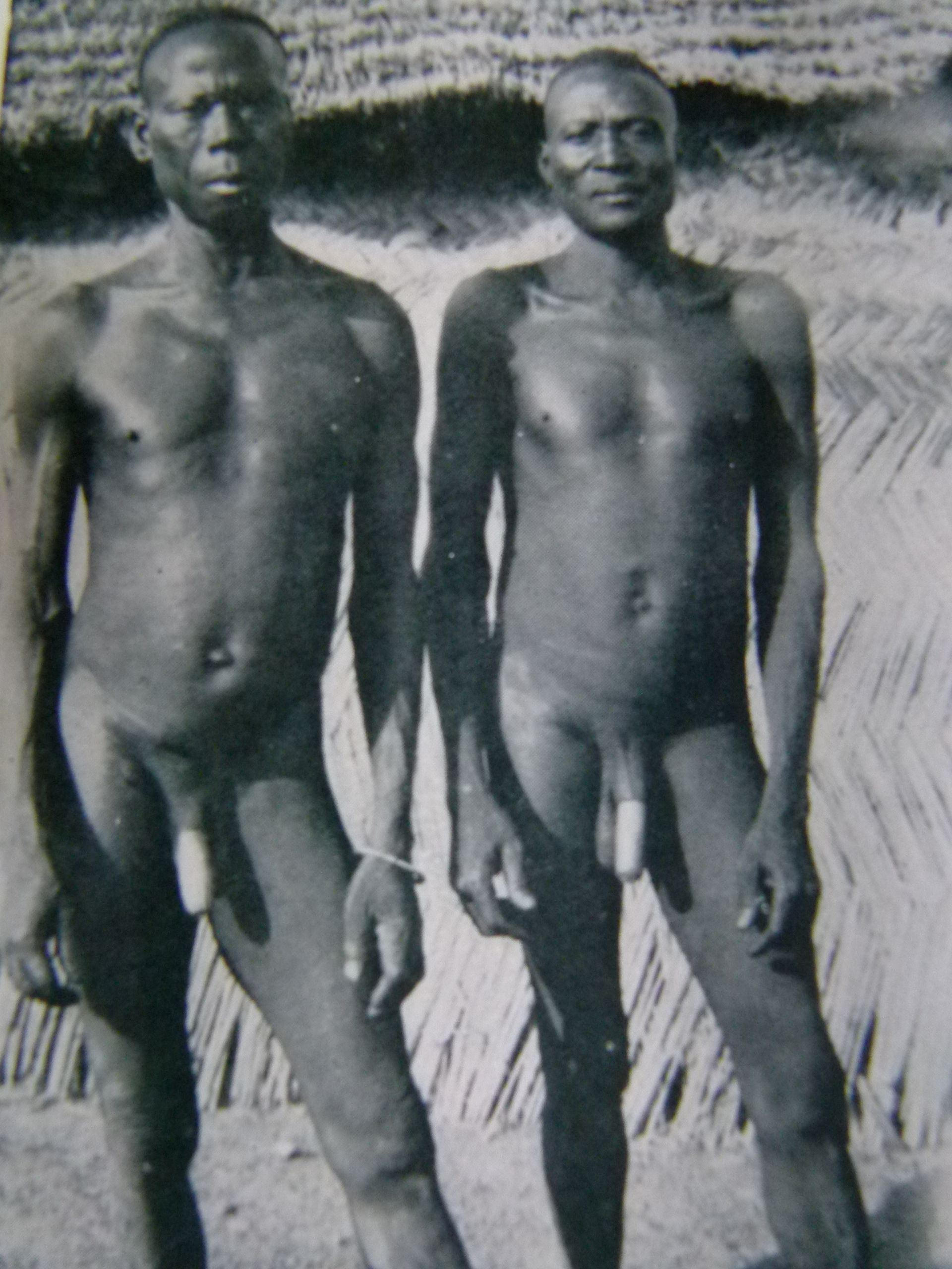 Ethiopia penis