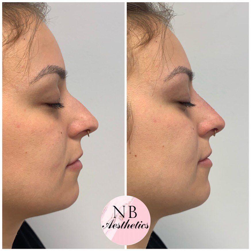 Nonsurgical rhinoplasty all nonsurgical rhinoplasty