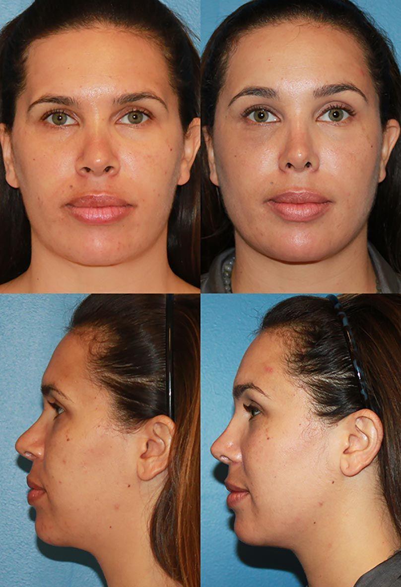 Rhinoplasty Surgery in San Diego Nose Reshaping San