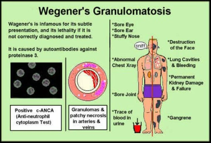 14+ Wegeners granulomatosis.  This was my mother's diagnosis at age 83.  It may have been present & untreated for years before, but she lived with it for an additional two years.