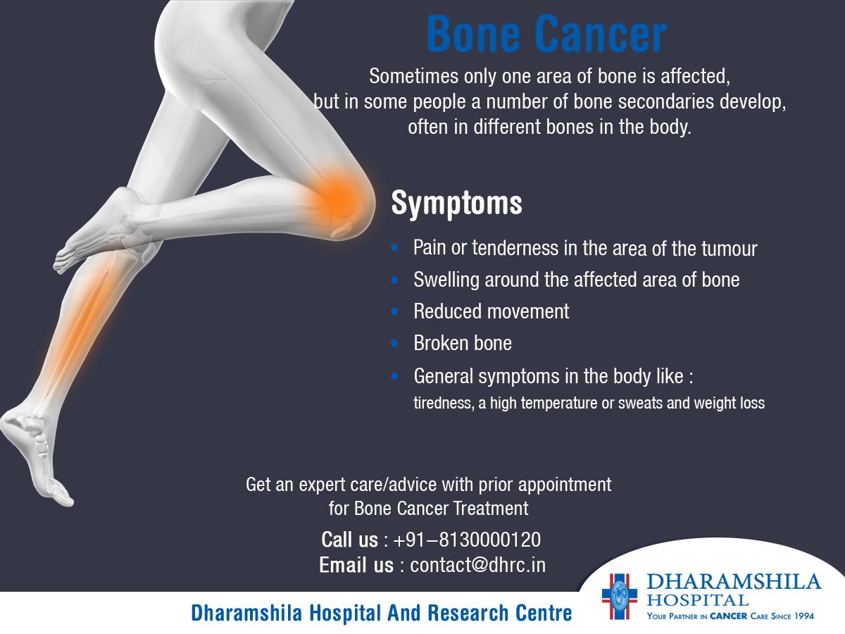 Signs and Symptoms of Juvenile Bone Cancer advise