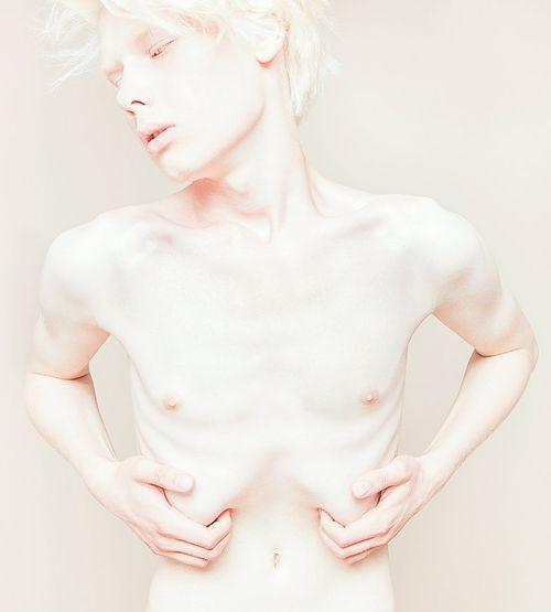 anorexic boy - Google Search