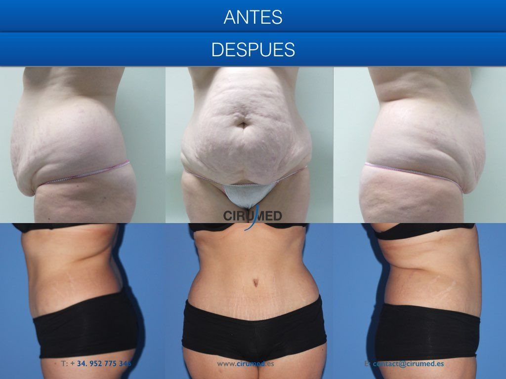Tummy Tuck Before And After Picture Awesome Change Good To Know