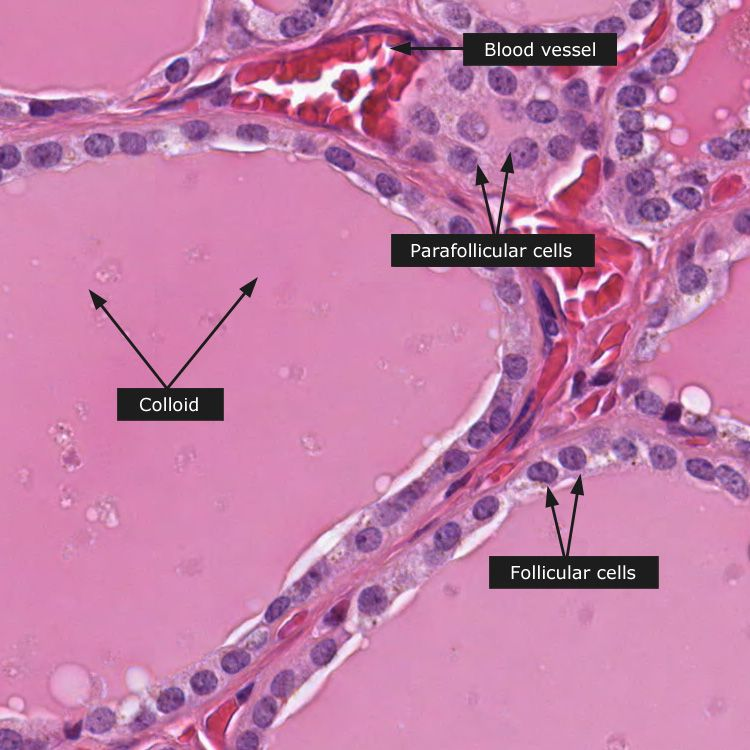 Dictionary Normal Thyroid Gland Thyroid Gland Histology
