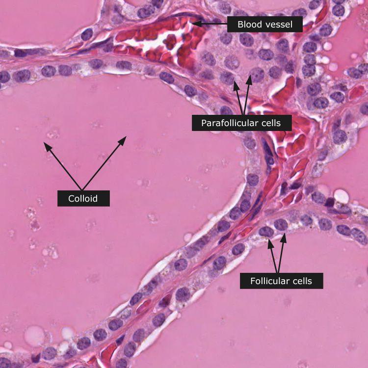 Normal Thyroid Gland Thyroid Gland Histology Slides Thyroid