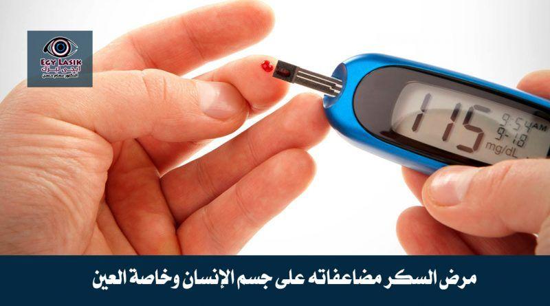 الأستيجماتيزم ما هو وهل يمكن علاجه عن طريق عملية الليزك Round Sunglasses Glasses Sunglasses