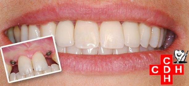 A #DentalImplant is an artificial tooth root that a dentist