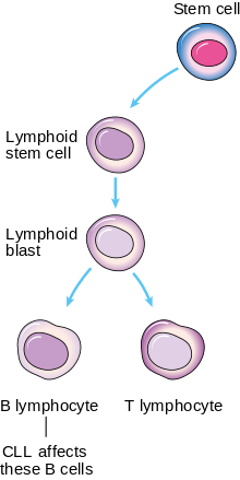 B-cell chronic lymphocytic leukemia - Wikipedia, the free