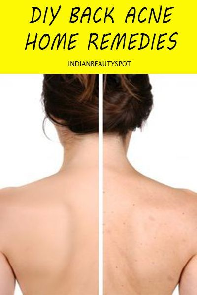 Natural Treatments To Get Rid Of Body Or Back Acne Body Acne Back Acne Treatment Chest Acne