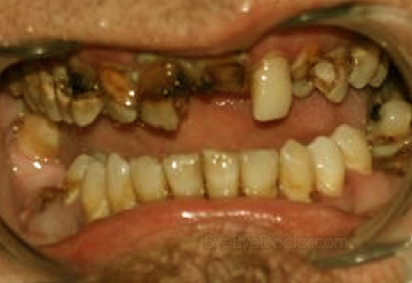 Image result for rotted teeth and beard