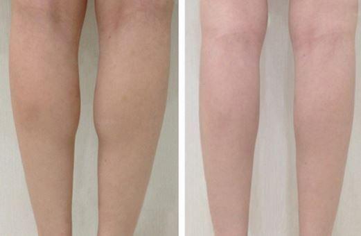 Thay đổi đôi chân thon gọn không hề khó với bí quyết dễ dàng sau