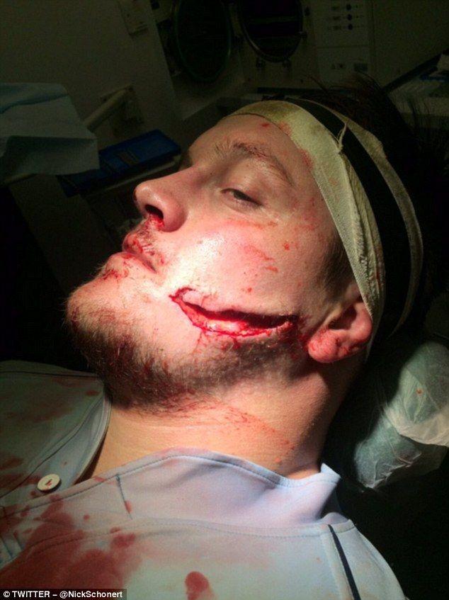 Face Cut   Morgue Wounds   Face cut, Makeup class, Makeup